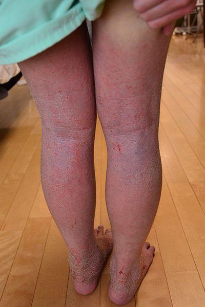 症例写真 子供 中学生 アトピー 足 膝裏 保湿依存 悪化