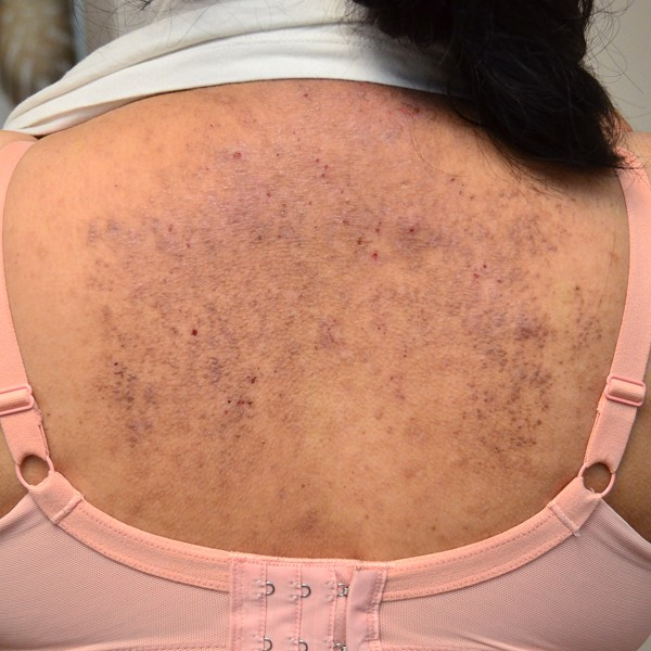 背中のアミロイド苔癬