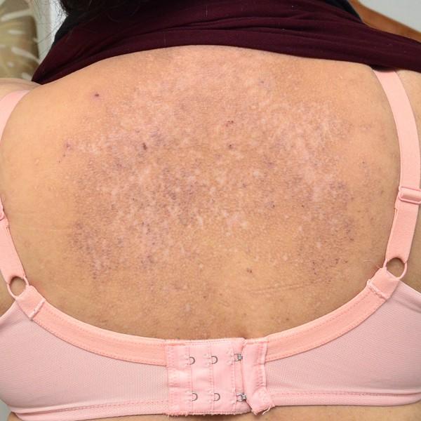 減少してきた背中のアミロイド苔癬