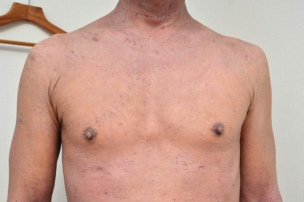 症例写真 大人 アトピー 胸 デコルテ