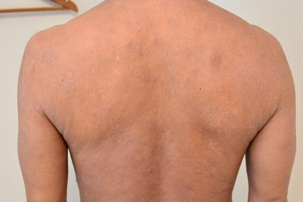 症例写真 大人 アトピー 肩 背中