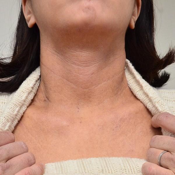 症例写真 大人 アトピー 顎 首 デコルテ