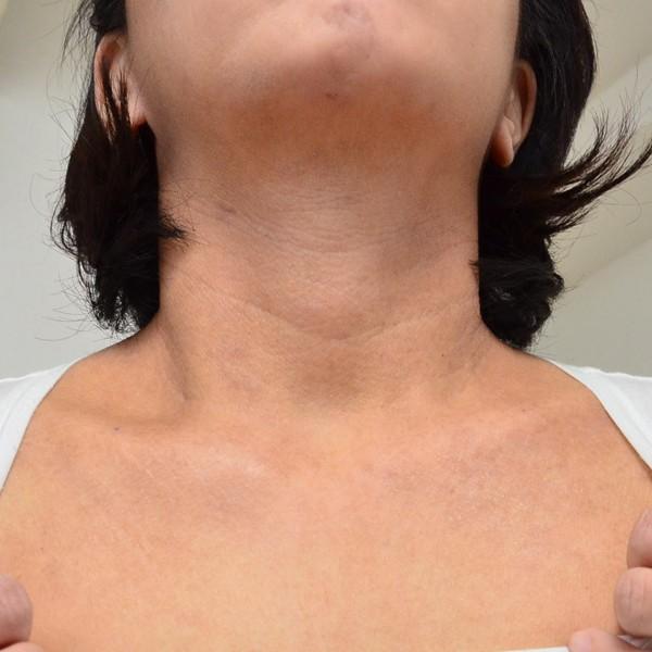 脱保湿と施術で改善してきた首のアトピー