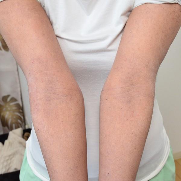 症例写真 大人 アトピー 手 肘