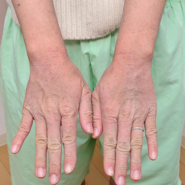 症例写真 大人 アトピー 手の甲 手首
