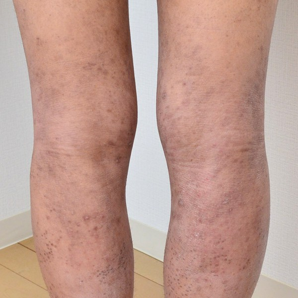 症例写真 大人 アトピー 足 膝裏