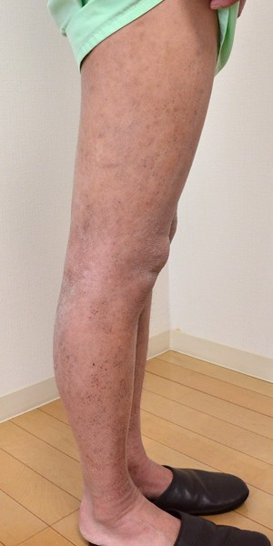 症例写真 大人 アトピー 膝