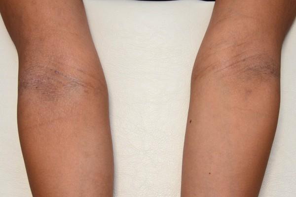 症例写真 大人 アトピー 肘