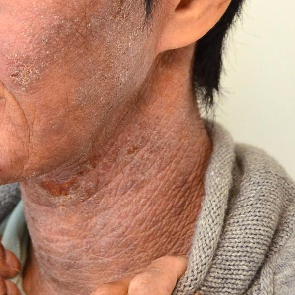 症例写真 大人 アトピー 首 顎 ほほ