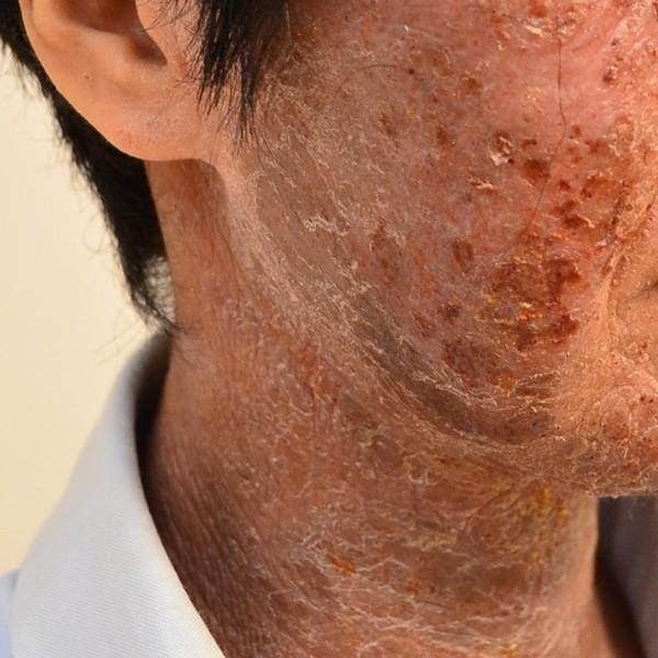 ステロイドと保湿依存で悪化した顔のアトピー