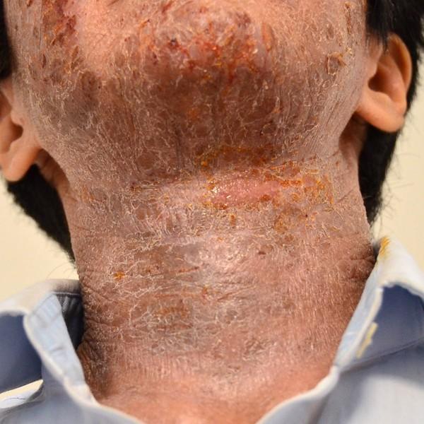 ステロイドと保湿依存で悪化した顔と首のアトピー