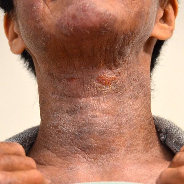 症例写真 大人 アトピー 首 顎