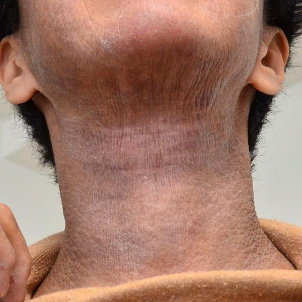 脱保湿と施術で改善してきた顔と首のアトピー