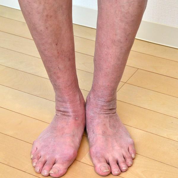 症例写真 大人 アトピー 足 すね 足首 足の甲