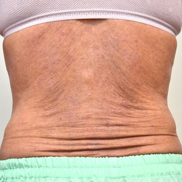 皮膚の機能が低下し改善しなくなったアトピー