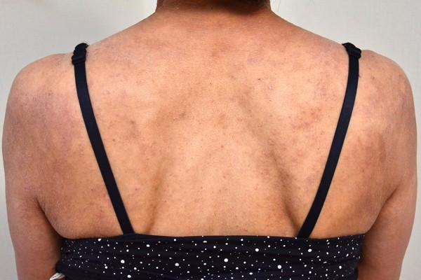 皮膚の機能が低下し改善しなくなった背中のアトピー