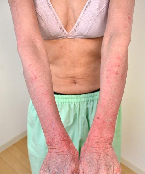 症例写真 大人 アトピー 腕 肘