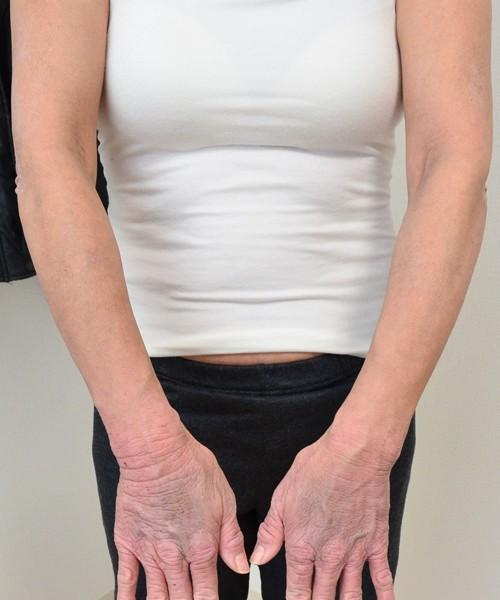 症例写真 大人 アトピー 腕 肘 手