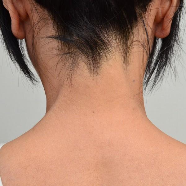 症例写真 大人 アトピー 首 肩