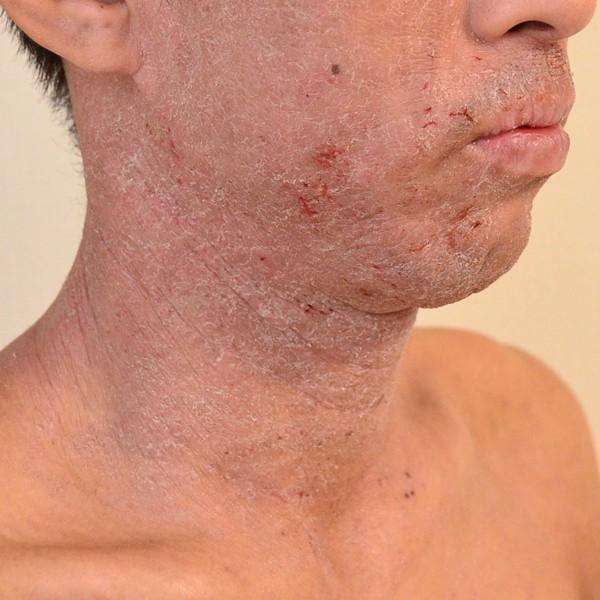 症例写真 大人 アトピー 顎 口の周り 首