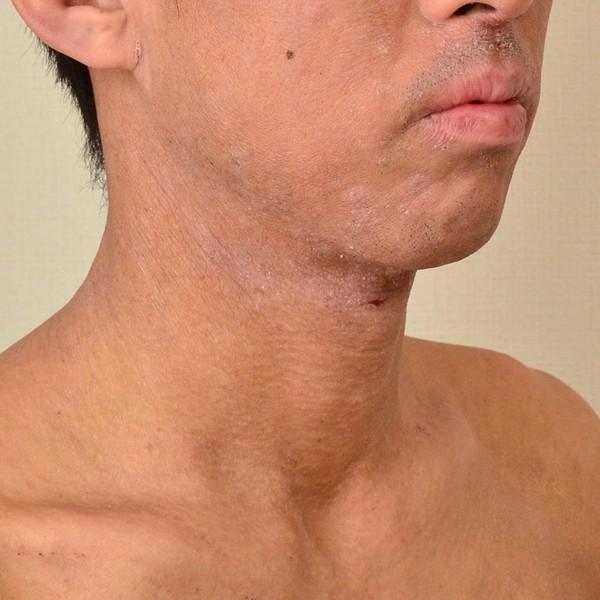 大人 アトピー 顎 口の周り 首