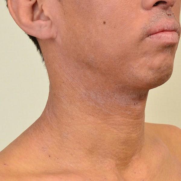 脱保湿と施術で改善してきた顔のアトピー
