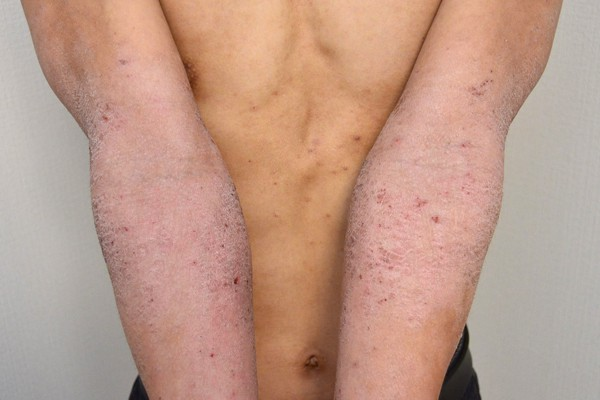 保湿依存で悪化した肘のアトピー