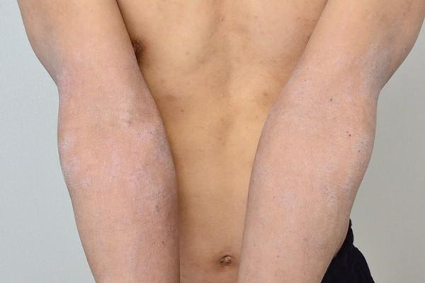 脱保湿と施術で改善してきた肘のアトピー