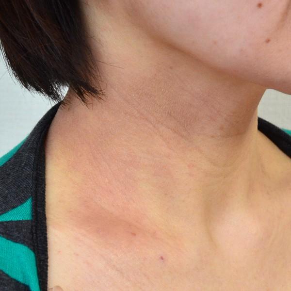 塗り薬と保湿で悪化した首のアトピー