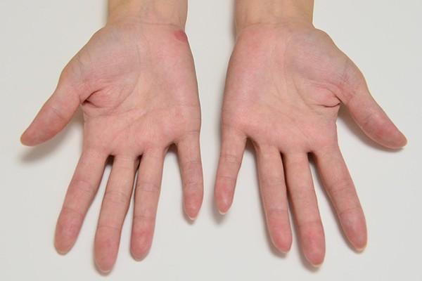症例写真 大人 アトピー 手のひら 汗腺 湿疹