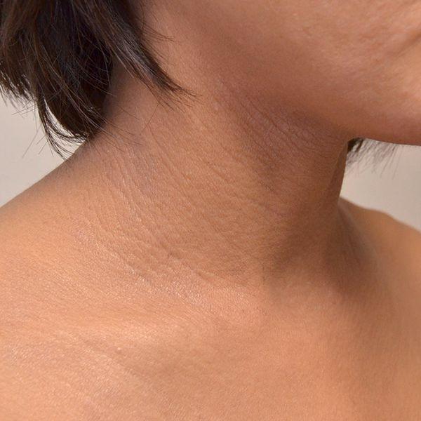 脱保湿と施術で改善してきた首の難治性アトピー