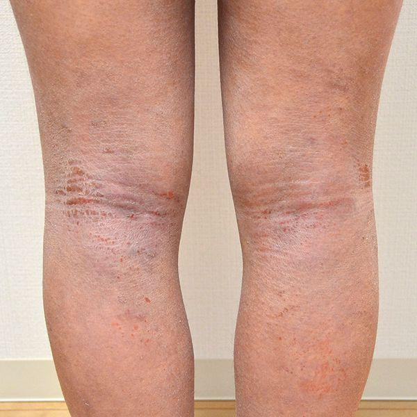 保湿依存で悪化した膝裏の難治性アトピー