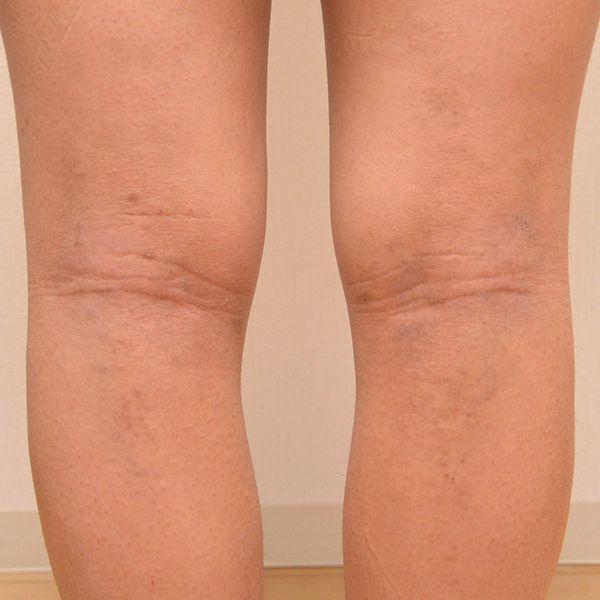 脱保湿と施術で改善してきた膝裏の難治性アトピー