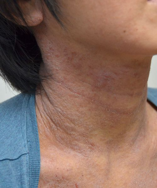 脱ステ・脱保湿後、治らなくなった首の難治性アトピー