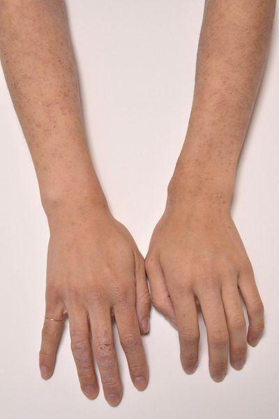 大人 アトピー 手首 手の甲 指