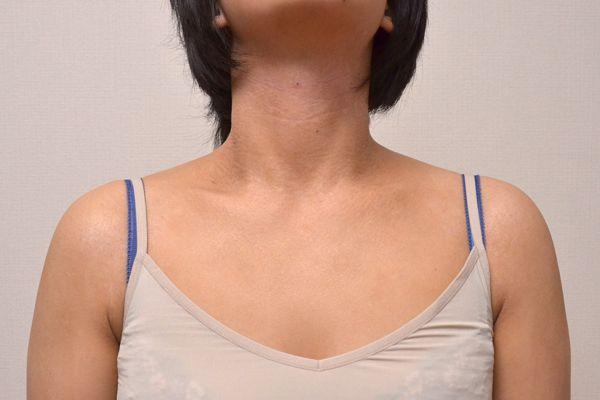 脱保湿と施術で改善してきた首とデコルテのアトピー