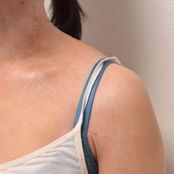 症例写真 大人 アトピー 左肩の前面