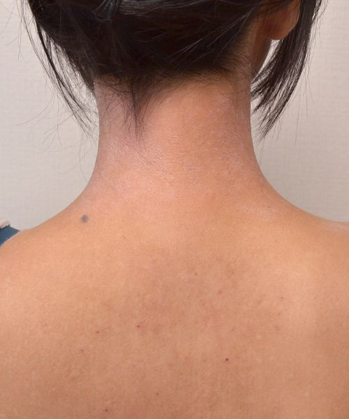 症例写真 大人 アトピー 首の後ろ