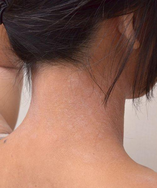 症例写真 大人 アトピー 首の右後ろ