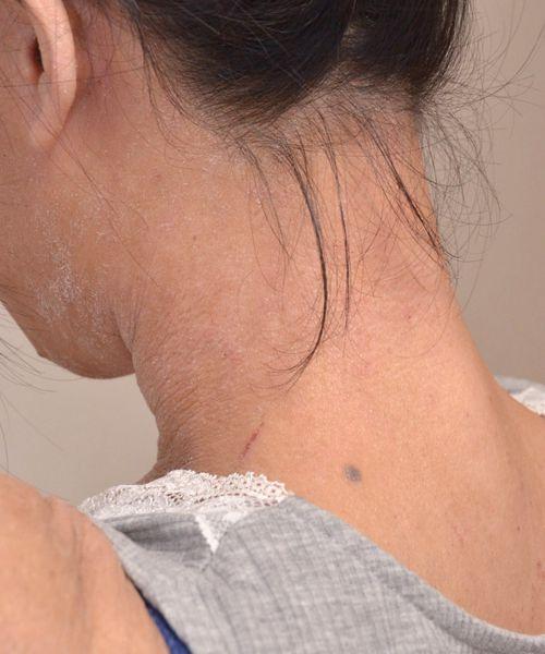 症例写真 大人 アトピー 首の左後ろ