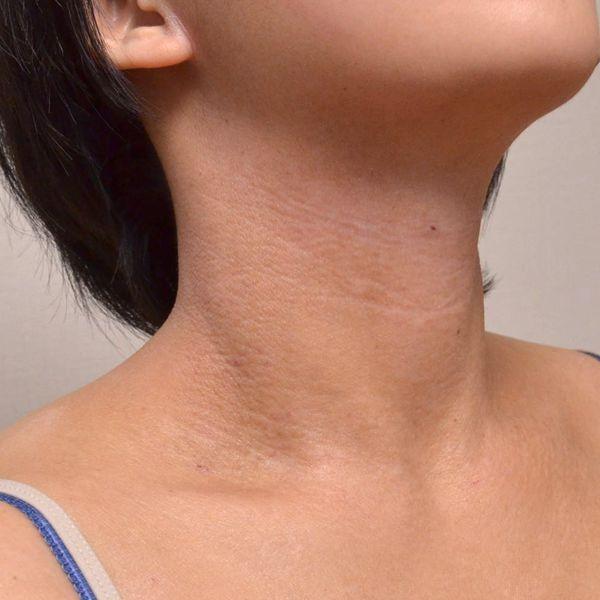 症例写真 大人 アトピー 首の右前面