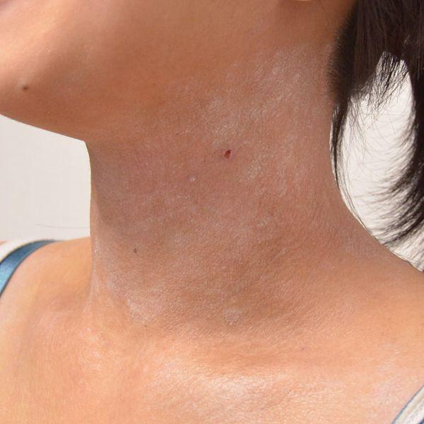 症例写真 大人 アトピー 首の左前面