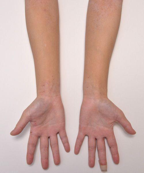 症例写真 大人 アトピー 手のひら 手首