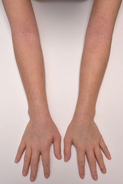 症例写真 大人 アトピー 上肢