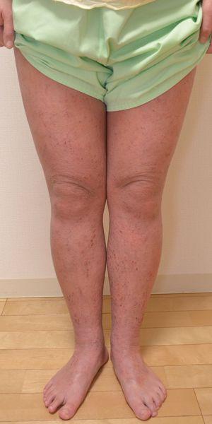 症例写真 大人 アトピー 足の前面