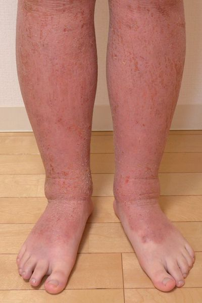 保湿依存で悪化した足のアトピー
