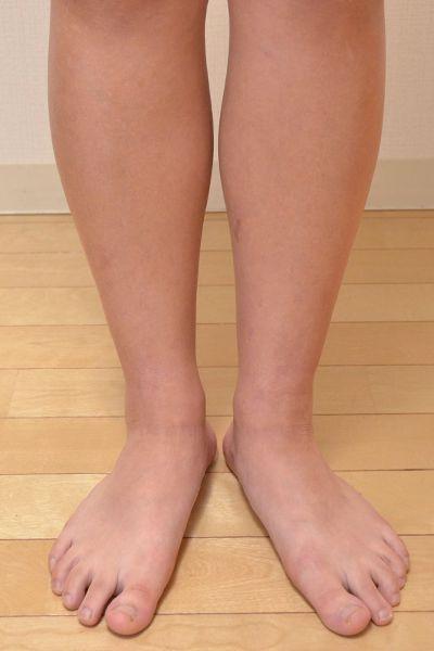 脱保湿と施術で改善してきた足のアトピー