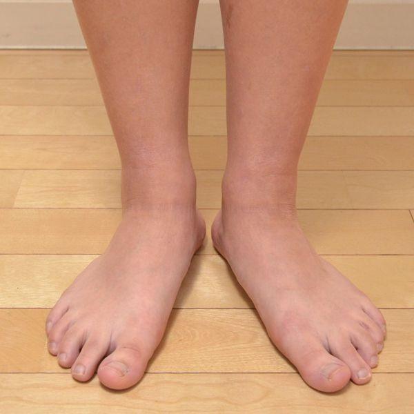 症例写真 大人 アトピー 足首 足の甲