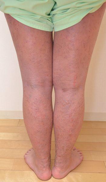 症例写真 大人 アトピー 足の後面